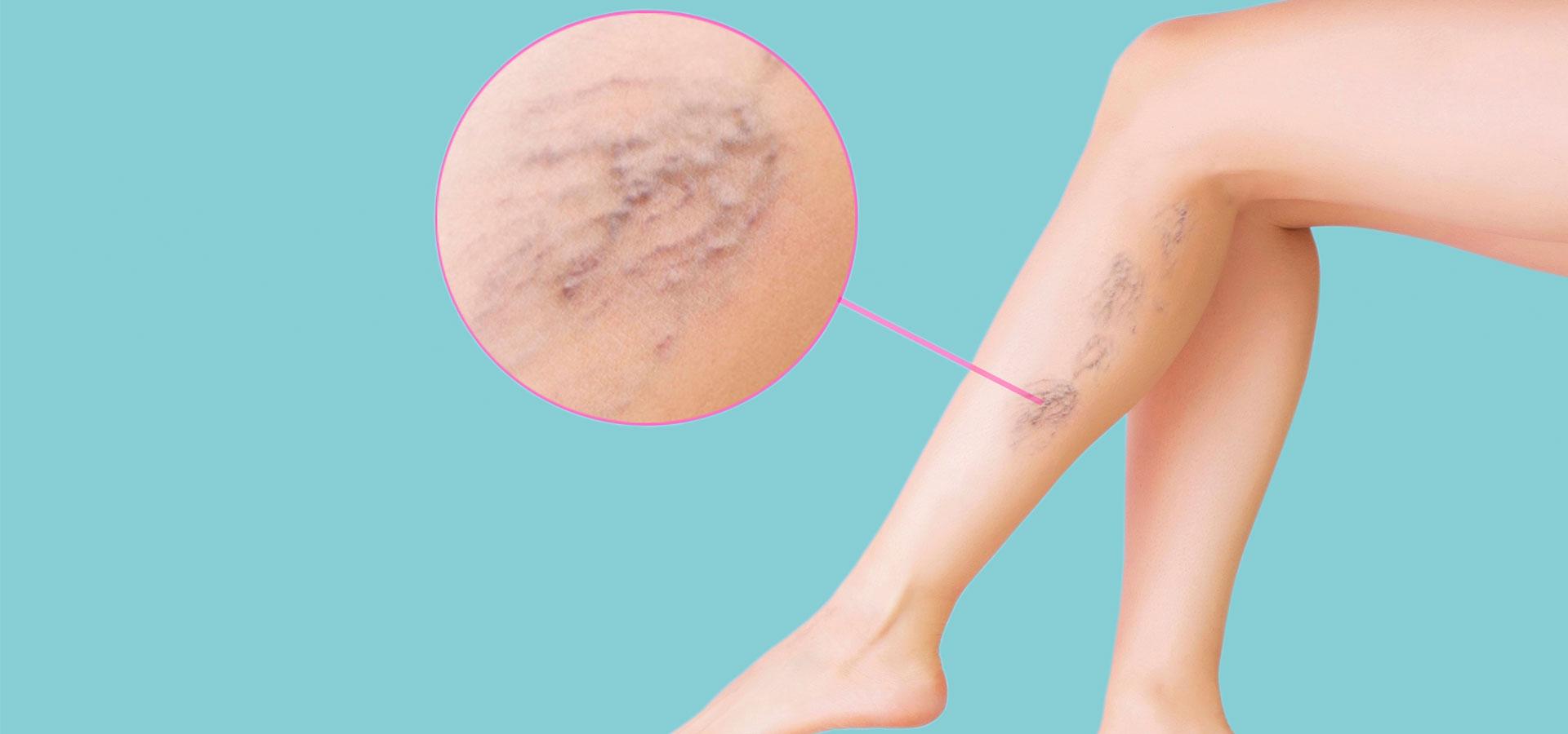 Este posibil să vă înălțați picioarele cu vene varicoase? - Simptome